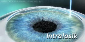 mini_intralasik