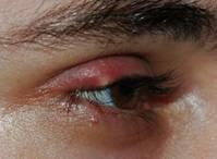 oculoplastia_01