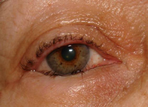 parpados-y-via-lagrimal-tratamiento_09