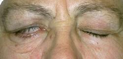 parpados-y-via-lagrimal-tratamiento_11