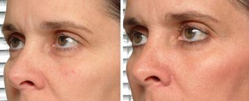 Eyelid Treatment by Brian Biesman, MD. Pre and 6 months post. Combination tip study