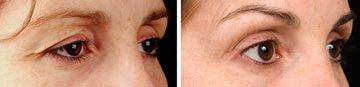Eyelid Treatment