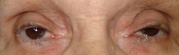parpados-y-via-lagrimal-tratamiento_10